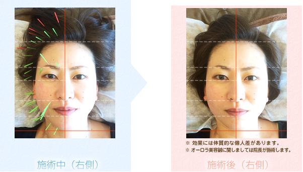 オーロラ美容鍼の効果before&after