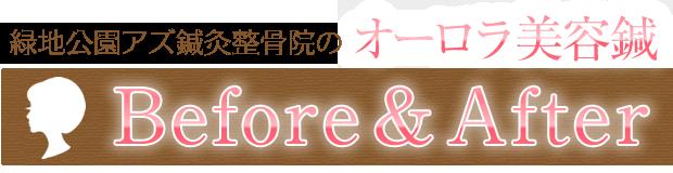 緑地公園アズ鍼灸整骨院のオーロラ美容鍼before&after